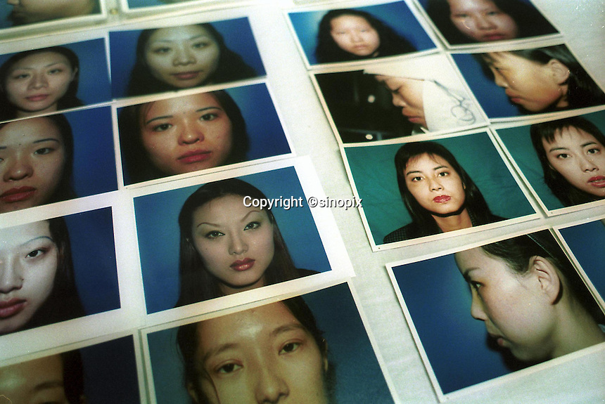 Photos of previous cosmetic surgery patients (before and after) are kept in a book at a state hospital in Shenzhen, China. As the Chinese population grows richer more and people are turning to cosmetic surgeons for nose, eye and breast jobs....PHOTO BY SINOPIX