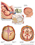 Traumatic Brain Injury During Birthing - Vacuum Extractor Delivery with Widespread Head Injuries. This full color medical exhibit depicts a vacuum extractor delivery with widespread head injuries.  The first image shows a lateral (side) cut-away view of the extraction. The second image shows the stations of presentation. The other three images show the head injuries of the infant as seen from three different views...