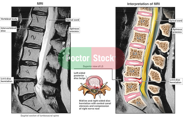 This medical exhibit depicts a MRI interpretation of the lumbar spine region with a disc herniation at L4-L5 causing spinal cord compression (cauda equina syndrome).