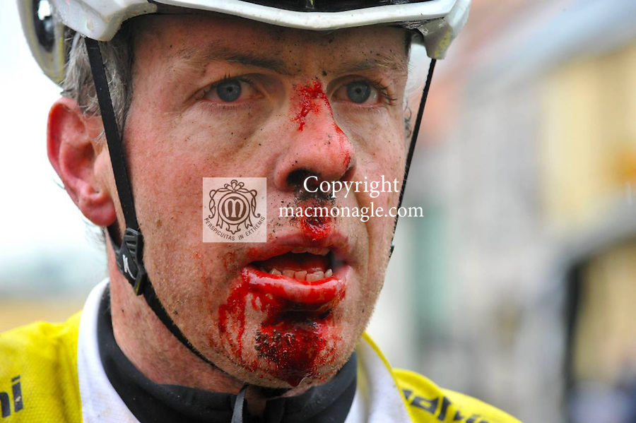 9-4-2012: A bloodied but unbowed Ryan Sherlock, Iverk Produce Carrick Wheelers who lost a dramatic finish to the Ras Mumhan when he crashed out on the final circuit, remounted his bike and lost his 40 second lead on the line to Dutchman Dennis Bakker of team Ruiter Dakkapellen Wielerteam in Killorglin County Kerry on Easter Monday. .Picture by Don MacMonagle