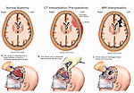 This medical exhibit depicts brain surgery following severe head trauma. It use a series of illustrations to depict normal, post-accident and post-operative sections of the brain. At the bottom are three steps of the surgical procedure showing the removal of damaged sections of the brain itself.