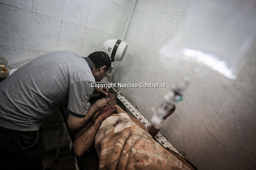 A syrian civilian gets medical assistance at a hospital in Manbij after he was wounded by a shrapnel during a shelling by airplane in a village close to.