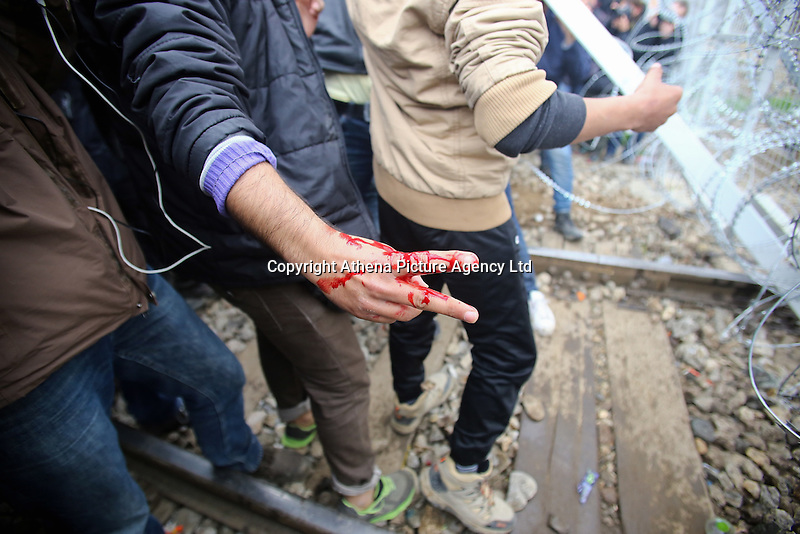 Pictured: A migrant shows his bleeding hand Monday 29 February 2016<br /> Re: A crowd of migrants has burst through a barbed-wire fence on the FYRO Macedonia-Greece border using a steel pole as a battering ram.<br /> TV footage showed migrants pushing against the fence at Idomeni, ripping away barbed wire, as FYRO Macedonian police let off tear gas to force them away.<br /> A section of fence was smashed open with the battering ram. It is not clear how many migrants got through.<br /> Many of those trying to reach northern Europe are Syrian and Iraqi refugees.<br /> About 6,500 people are stuck on the Greek side of the border, as FYRO Macedonia is letting very few in. Many have been camping in squalid conditions for a week or more, with little food or medical help.