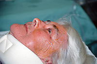 Patient after cataract operation. The disinfectant has been removed from around her eye and she is resting in the recovery room. This image may only be used to portray the subject in a positive manner..©shoutpictures.com..john@shoutpictures.com