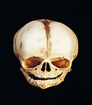 Skull of a human newborn baby showing the uncalcified areas or fontanelles between the skull or calvarial bones. The fontanelles give the newborn's skull flexibility, allowing it to pass through the birth canal. At least six fontanelles are present at birth, the largest being the anterior fontanelle or soft spot on top of a baby's head. The fontanelles close during the first two years of life as the edges of the calvarial bones grow.