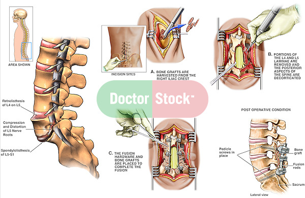 Back Surgery - L5-S1 Spondylolisthesis with Subsequent Surgical Repair. This full color medical exhibit consists of six images depicting spondylolisthesis and surgery. The first image shows the initial spondylolisthesis of the lumbar spine. The next five images show five steps to the repair and fixation of the problem..