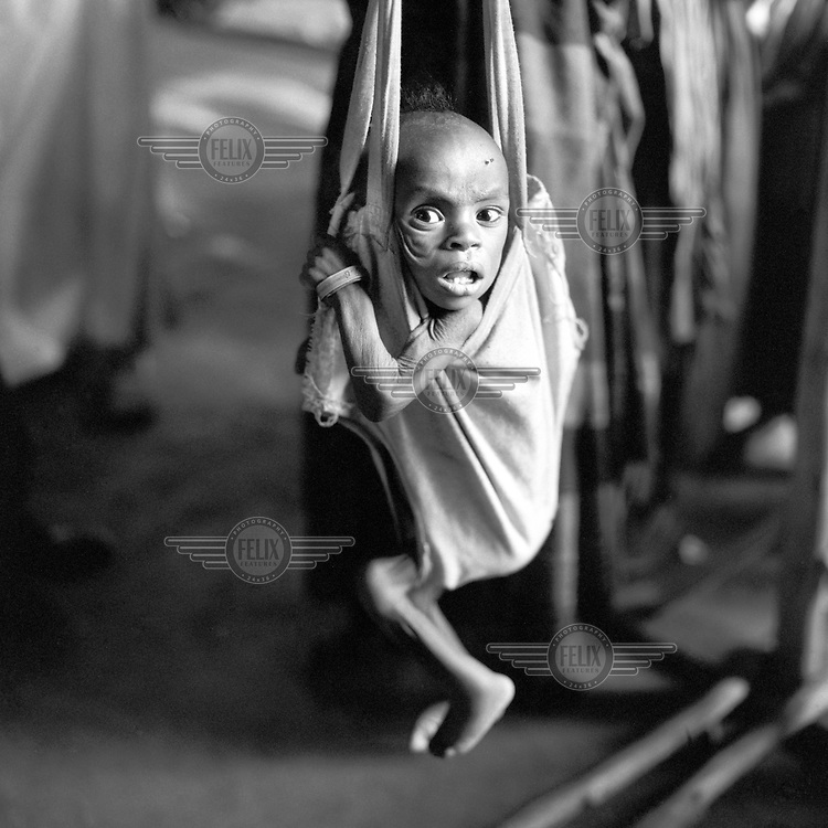A severely malnourished child is weighed at Shawe Camp. Around 25,000 internally displaced persons (IDPs) took refuge in the camp while waiting for resettlement after being driven from their homes in Harraghe province by a shortage of land and a persistent drought.