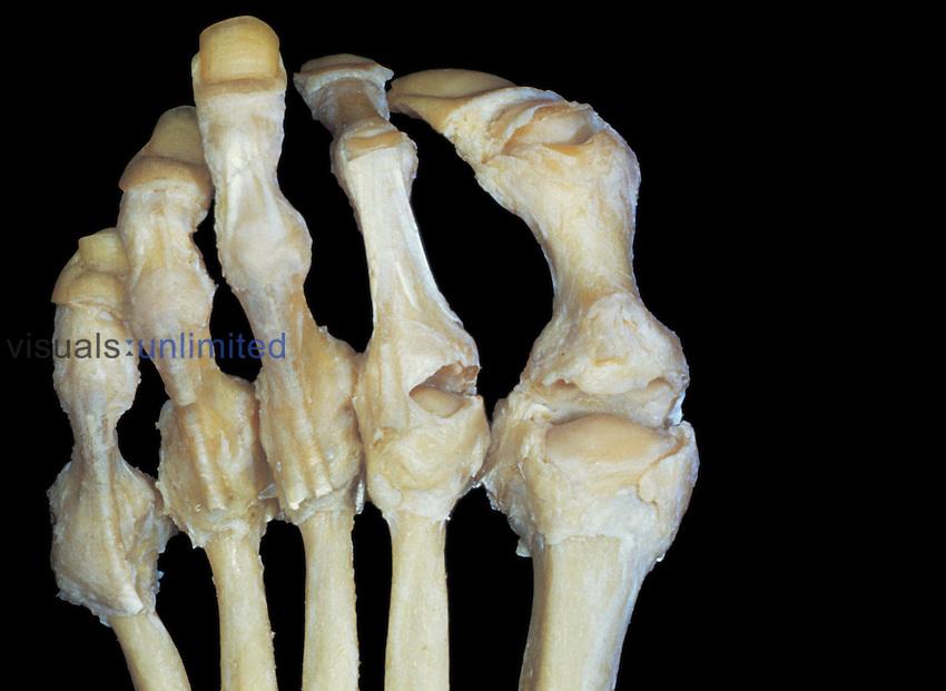 Human toe joints.