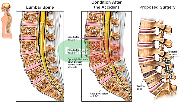 Lumbar Spine Injury - L2-3, L3-4 Disc Bulges and L4-5 Spondylolisthesis with Proposed Spinal Fusion Surgery.