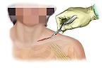 Supraclavicular incision to access the brachial plexus area