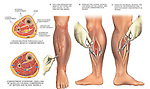 Compartment Syndrome of Left Leg with Surgical Fasciotomy