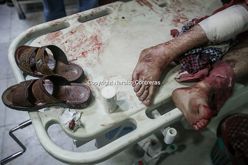 July 03, 2015 - Sana'a, Yemen: A civilian (not pictured) lays on a trolley as he receives medical treatment after a fighter jet from the Saudi-led coalition bombed the civilian neighborhood of Jaraf located in Zoubeiri area in the Yemeni capital of Sana'a. The neighborhood was bombed twice during an attemp to hit the house of the leader Houthi Brigadier Ali Al Nashri. The bombs missled the target killing many civilians, among the dead were one woman and two children. (Photo/Narciso Contreras)