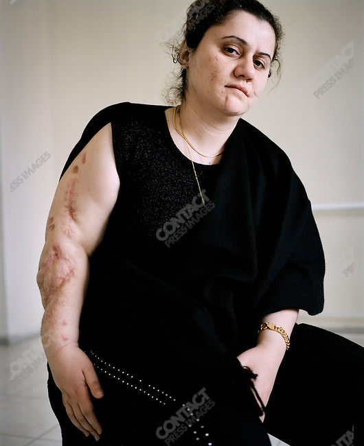 Zena, an Iraqi refugee, who was the sole survivor of an internet cafe bombing in Baghdad, in physical therapy a the Médecins Sans Frontières (Doctor's Without Borders) hospital in Amman, Jordan, April, 2007.