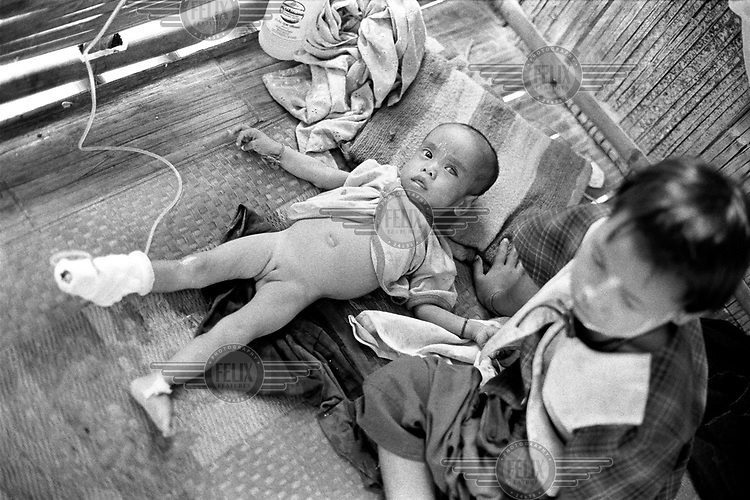 A malnourished four year-old girl in a Karenni Government clinic. She recently arrived with her sister having fled forced relocation in Shadaw township, where the Burma Army was depopulating the area to cut off support for the Karenni resistance.