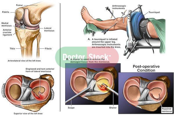 Knee Injury - Torn Lateral Meniscus (Cartilage) with Athroscopy. This custom medical exhibit details an injury to the left knee illustrating a tear of the anterior horn of the lateral meniscus. In addition, several surgical images show the following: 1. Insertion of arthroscopic instruments into the left knee joint, 2. Superior view with resection of the torn cartilage of the meniscus, 3. Final post-operative view of the knee following debridement.