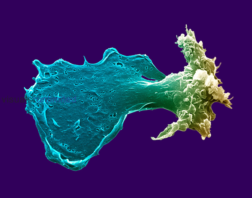 Macrophage with extended pseudopod.  SEM X12,000