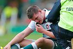 161015 Freddie Burns face injury