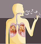 Illustrative image of human representation smoking cigarette depicting lung cancer