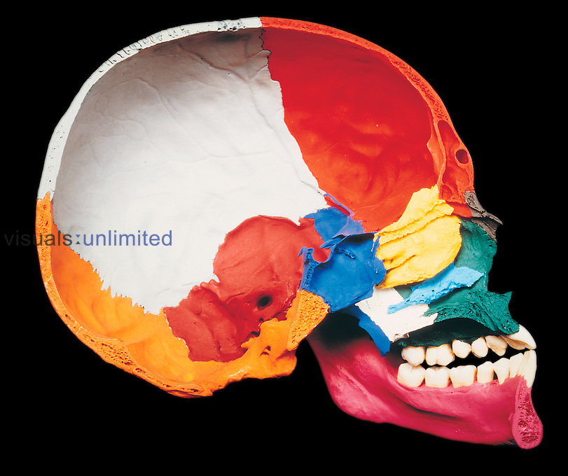 Internal surface of the left side of a painted human skull viewed in median sagittal section. Maxilla (green), nasal bone (black), lacrimal bone (light blue), ethmoid bone (yellow), zygomatic bone (gold), sphenoid bone (blue), mandible or jaw (pink), temporal bone (dark red, center), occipital bone (orange), frontal bone (bright red, top), and parietal bone (white).