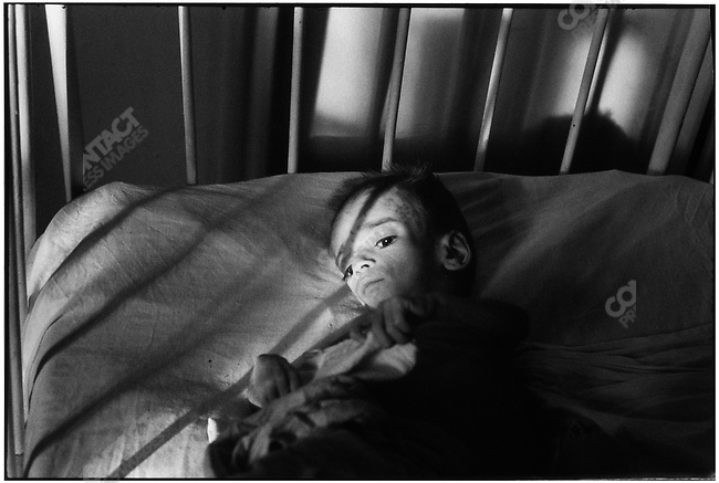 Orphan with AIDS, Victor Babes Hospital, Bucharest, Romania, February 1990