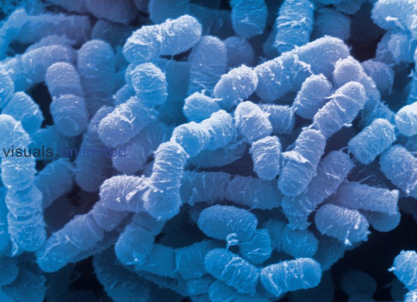 Clostridium perfringens Bacteria are anaerobic food-borne pathogens. SEM.
