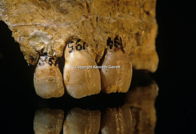 Neandertal; Neanderthal; Human Evolution;  Croatia, 30,000-80,000, interbreeding with humans, Krapina Cave, Vindiya cave, Jacob Radovcic, Fred Smith, cannibalism