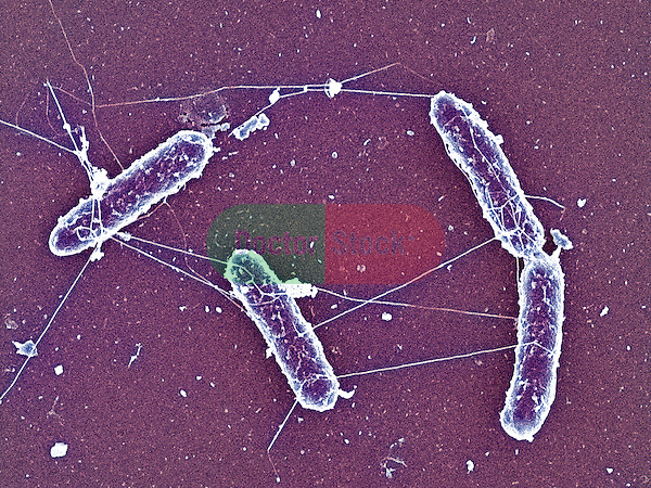 Salmonella enteritidis bacteria, causes salmonellosis, typhoid fever, food poisoning, 15,000x magnification