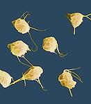 Trichomonas vaginalis Protozoans, the STD pathogen of Trichomoniasis. SEM X1000