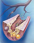 atherosclerosis or lipid lowering drugs
