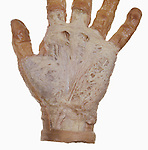Palmar aponeurosis of the left hand.