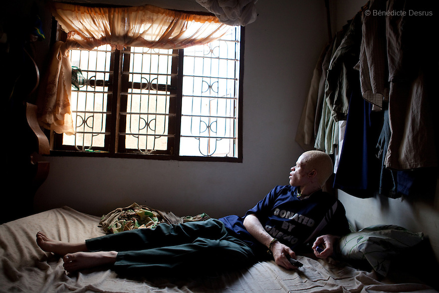 10 june 2010 - Dar Es Salaam, Tanzania - Samuel Mluges son: Nixon Samuel Mluge, (22 yrs) on his bedroom. Nixon has badly damaged skin. As well as sun damage, his delicate skin is prone to infections and diseases if not taken care of. Samuel Herman Mluge (51yrs) an albino rights activist in Dar Es Salaam, Tanzania and his wife Teresa January (46 yrs) have five children, all with albinism. Albinism is a recessive gene but when two carriers of the gene have a child it has a one in four chance of getting albinism. Tanzania is believed to have Africa' s largest population of albinos, a genetic condition caused by a lack of melanin in the skin, eyes and hair and has an incidence seven times higher than elsewhere in the world. Over the last three years people with albinism have been threatened by an alarming increase in the criminal trade of Albino body parts. At least 53 albinos have been killed since 2007, some as young as six months old. Many more have been attacked with machetes and their limbs stolen while they are still alive. Witch doctors tell their clients that the body parts will bring them luck in love, life and business. The belief that albino body parts have magical powers has driven thousands of Africa's albinos into hiding, fearful of losing their lives and limbs to unscrupulous dealers who can make up to US$75,000 selling a complete dismembered set. The killings have now spread to neighbouring countries, like Kenya, Uganda and Burundi and an international market for albino body parts has been rumoured to reach as far as West Africa. Photo credit: Benedicte Desrus