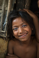 Bangladesh, Cox's Bazar. Kutupalong Rohingya Refugee Camp. The Rohingya, a Muslim ethnic group  denied citizenship in Burma/Myanmar have escaped persecution from Burmese militants in their country. There are up to 500,000 migrants and refugees living in makeshift camps in Cox's Bazar. Young girl.