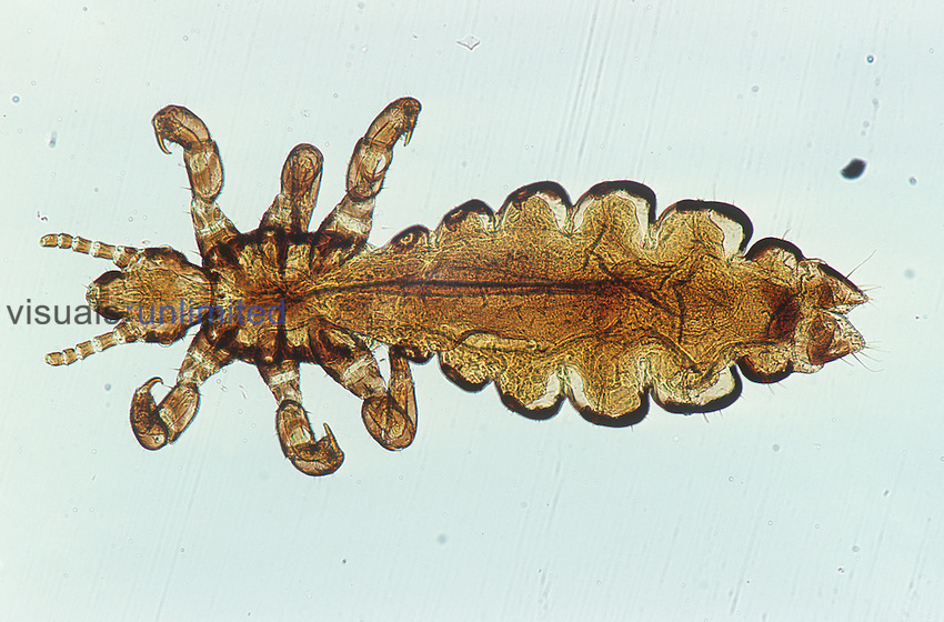 Human Head Louse adult (Pediculus humanus), whole mount. LM.