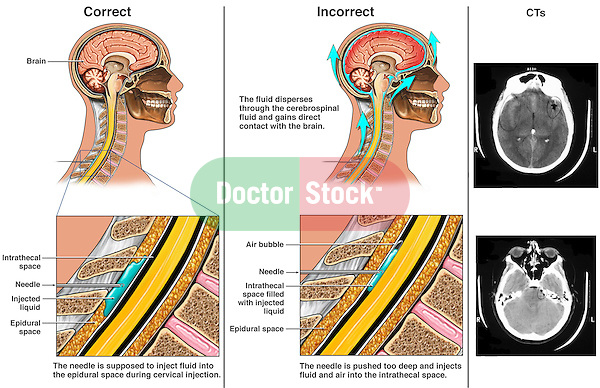 Iatrogenic Brain Injury - Incorrect Cervical Injection with Resulting Complications. This custom medical exhibit features  correct and incorrect needle injection placement into the layers of the cervical spine. In the incorrect scenario, the needle has been placed too deeply, beyond the epidural space, entering the intrathecal space leading to injection of material directly into the cerebrospinal fluid which circulates to the brain, Actual CT film prints reveal the subsequent brain damage.