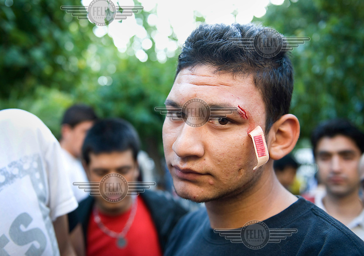 A young illegal immigrant shows the wounds resulting from a kicking he received the other day by what he claims 'just a Greek passer by'. Tensions are rising in the Greek capital as immigration-related problems spiral out of control. According to UNHCR, 38,992 immigrants arrived in Greece in the first 10 months of 2010, whereas in 2009 the number was only 7,574.