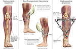 Leg Injury - Tibial Fractures with Four Compartment Fasciotomy Surgery.