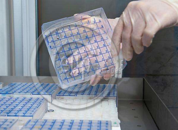 Brussels-Belgium - August 26, 2010 -- Samples of DNA at the Centre for Medical Genetics, Universitair Ziekenhuis Brussel -- Photo: Horst Wagner / eup-images