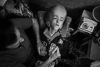 A 17 year old Belorussian girl with Hydrocephalus diagnosis held by single father living in Gomel - one of the cities affected by radioactive cloud at the time of Chernobyl catastrophe