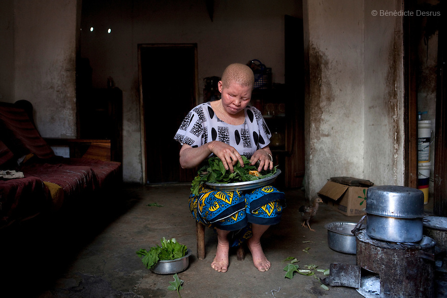 June 28, 2010 - Dar es Salaam, Tanzania - Jutia Jalehe prepares dinner at home. Ali Mohamed is a 61 year old Muslim man with albinism living in Tanzania where he has a shop selling rice and grains. Ali married his first wife, Jutia Jalehe, in 1978. Jutia is also an albino and together they had 1 son with albinism named Salehe Ally. In 1983, Mohamed married his second wife, Nuru Mohamedy who did not have Albinism. Together they had 6 children, two of them with albinism and four of them without albinism. Albinism is a recessive gene but when two carriers of the gene have a child it has a one in four chance of getting albinism. Tanzania is believed to have Africa' s largest population of albinos, a genetic condition caused by a lack of melanin in the skin, eyes and hair and has an incidence seven times higher than elsewhere in the world. Over the last three years people with albinism have been threatened by an alarming increase in the criminal trade of Albino body parts. At least 53 albinos have been killed since 2007, some as young as six months old. Many more have been attacked with machetes and their limbs stolen while they are still alive. Witch doctors tell their clients that the body parts will bring them luck in love, life and business. The belief that albino body parts have magical powers has driven thousands of Africa's albinos into hiding, fearful of losing their lives and limbs to unscrupulous dealers who can make up to US$75,000 selling a complete dismembered set. The killings have now spread to neighboring countries, like Kenya, Uganda and Burundi and an international market for albino body parts has been rumored to reach as far as West Africa. Photo credit: Benedicte Desrus