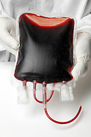 Bag of blood.