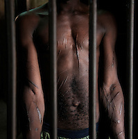 23 year old Mohamed Kamara is a violent habitual offender who has been in Pademba Central Prison twice before. He is being held in a punishment cell for two weeks for possession of a phone in his cell. He says his injuries are the result of the lashes of the guards, but other inmates who know him said it is the result of self-mutilation.