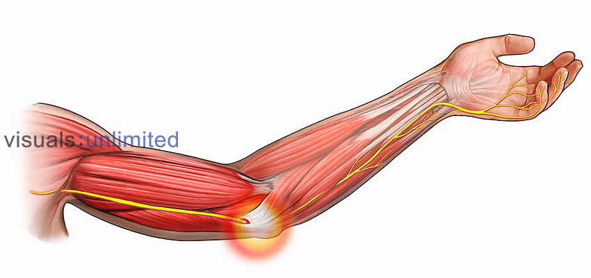Biomedical illustration of ulnar nerve impingement and associated pain.