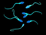 Biomedical illustration of normal and deformed sperm
