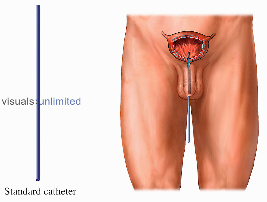 Medical illustration depicting the placement of a standard catheter into the male bladder.