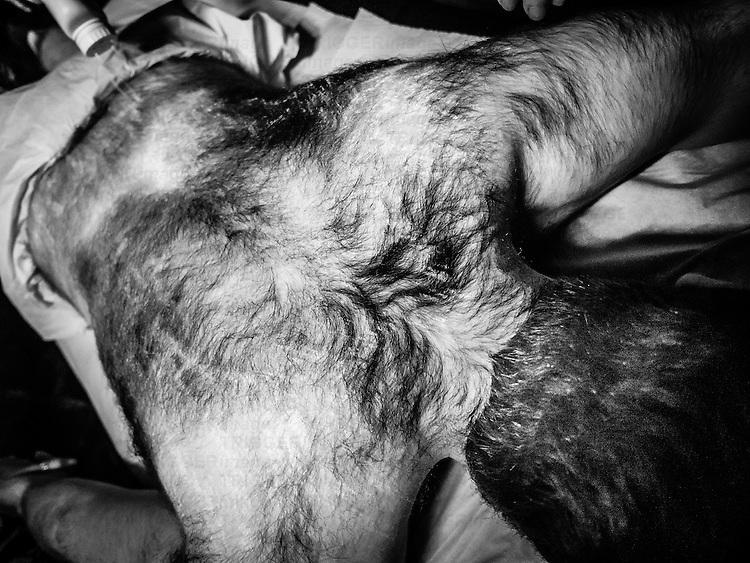 Male figures having waxing treatment