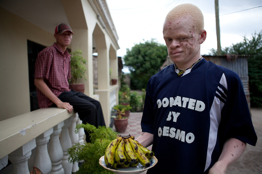 10 june 2010 - Dar Es Salaam, Tanzania - Samuel Mluges sons: Denis Mulge, 27 yrs (L) and Nixon Samuel Mluge, 22 yrs (R). Nixon has badly damaged skin. As well as sun damage, his delicate skin is prone to infections and diseases if not taken care of. Samuel Herman Mluge (51yrs) an albino rights activist in Dar Es Salaam, Tanzania and his wife Teresa January (46 yrs) have five children, all with albinism. Albinism is a recessive gene but when two carriers of the gene have a child it has a one in four chance of getting albinism. Tanzania is believed to have Africa' s largest population of albinos, a genetic condition caused by a lack of melanin in the skin, eyes and hair and has an incidence seven times higher than elsewhere in the world. Over the last three years people with albinism have been threatened by an alarming increase in the criminal trade of Albino body parts.At least 53 albinos have been killed since 2007, some as young as six months old.Many more have been attacked with machetes and their limbs stolen while they are still alive. Witch doctors tell their clients that the body parts will bring them luck in love, life and business. The belief that albino body parts have magical powers has driven thousands of Africa's albinos into hiding, fearful of losing their lives and limbs to unscrupulous dealers who can make up to US$75,000 selling a complete dismembered set. The killings have now spread to neighbouring countries, like Kenya, Uganda and Burundi and an international market for albino body parts has been rumoured to reach as far as West Africa. Photo credit: Benedicte Desrus