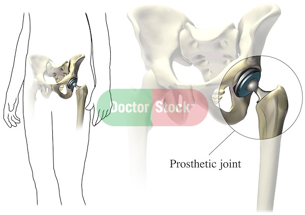 This medical exhibit illustrates a prosthetic (artificial ) joint placed in the hip.