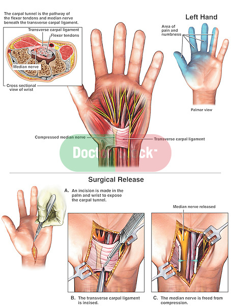 Accurate depiction of carpal tunnel syndrome and median nerve release surgery on the LEFT hand. Shows normal carpal tunnel region of the wrist with labels for the transverse carpal ligament, flexor tendons and median nerve. Next two graphics display median nerve compression (neuropathy), with the areas of pain and numbness. Surgical steps: A. incision made into the palm and wrist exposing the carpal tunnel; B. Incision of the transverse carpal ligament; and 3. Surgical release of the median nerve.