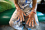 An acid attack survivor shows the scars on her hands.