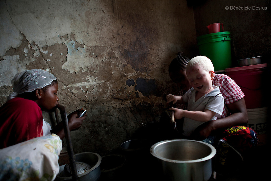 June 30, 2010 - Dar es Salaam, Tanzania -Mwanahawa Yusufu (R) is a 27 year old woman without albinism. She lives with her 2 year old albino son, Yusufu Sereman, in a 6 m2 rented room in Dar es Salaam. When she gave birth to Yusufu, her husband got very angry and left her saying that she had slept with a musungu, a white man. Since then, she has never heard from him. Mwanahawa survives as a single parent roasting and selling Cassava and other small food items. Her son Selemani already has badly damaged skin from exposure to the sun, but she cant get him treat because she has difficulties to pay for the treatments. Usually developing by a very young age a facial rash of dark melanomas is often the precursor of the skin cancer that kills so many albinos in early adulthood. Albinism is a recessive gene but when two carriers of the gene have a child it has a one in four chance of getting albinism. Tanzania is believed to have Africa' s largest population of albinos, a genetic condition caused by a lack of melanin in the skin, eyes and hair and has an incidence seven times higher than elsewhere in the world. Over the last three years people with albinism have been threatened by an alarming increase in the criminal trade of Albino body parts. At least 53 albinos have been killed since 2007, some as young as six months old. Many more have been attacked with machetes and their limbs stolen while they are still alive. Witch doctors tell their clients that the body parts will bring them luck in love, life and business. The belief that albino body parts have magical powers has driven thousands of Africa's albinos into hiding, fearful of losing their lives and limbs to unscrupulous dealers who can make up to US$75,000 selling a complete dismembered set. The killings have now spread to neighboring countries, like Kenya, Uganda and Burundi and an international market for albino body parts has been rumored to reach as far as West Africa. Photo credit: Benedicte Desrus